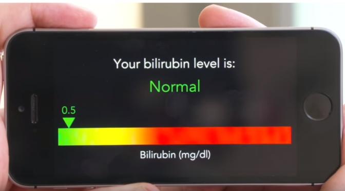 BiliScreen|スマホカメラの自撮りで膵臓がんを簡単にスクリーニングできるアプリ|膵臓がんのサイン「黄疸」の原因となる「ビリルビン値」を測定|ワシントン大学