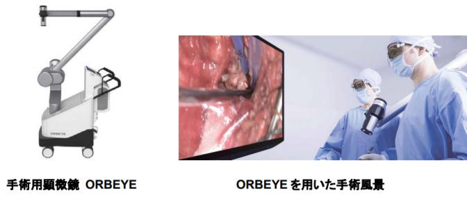 #ソニー と #オリンパス、4K・3Dビデオ技術を搭載した手術用顕微鏡システム「ORBEYE(オーブアイ)」開発