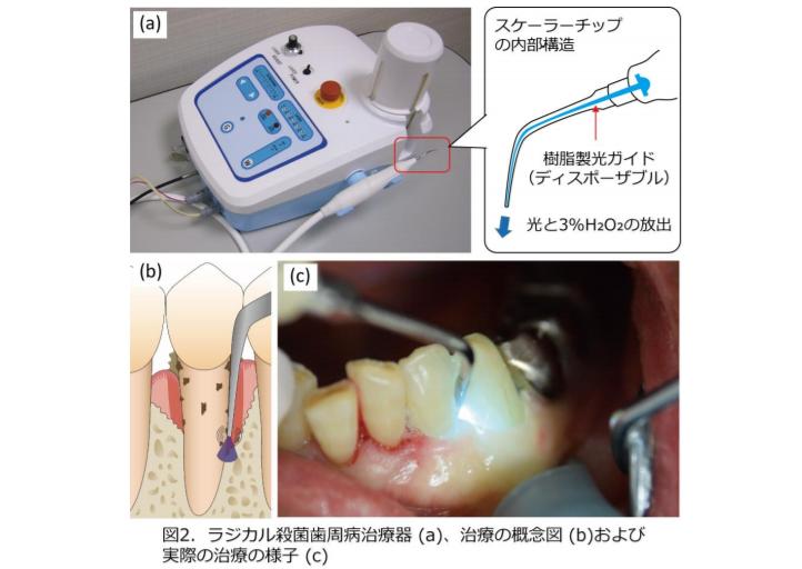 ラジカル殺菌歯周病治療器を用いた歯周病治療は、従来の治療法よりも歯周病菌を減少させて歯周ポケットを浅くする効果に優れることを実証|東北大