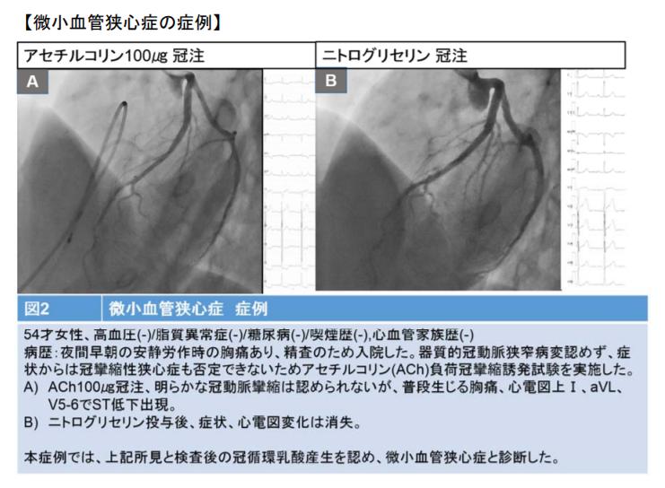 微小血管狭心症の症例