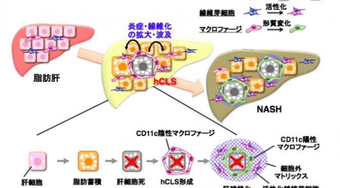 肝線維化を促進する疾患特異的マクロファージを同定し、脂肪肝からNASHを発症する新たな病態メカニズムを解明|短期間でNASHを発症する誘導性NASHモデル開発|#東京医科歯科大学