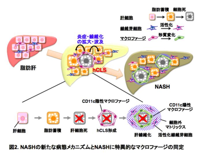 NASHの新たな病態メカニズムとNASHに特異的なマクロファージの同定