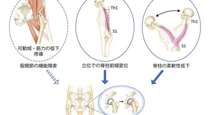変形性股関節症の進行に姿勢の悪化(立っている時の脊柱の傾き)と脊柱の柔軟性低下が影響|#京大