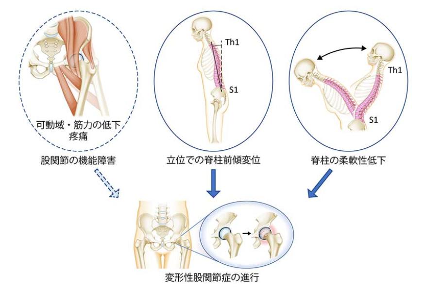 股関節の機能障害(可動域・筋力の低下、疼痛)よりも立位での脊柱前傾変位・脊柱の柔軟性低下が変形性股関節症の進行の重要な要因である