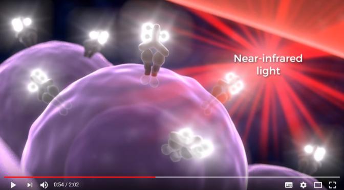日本でも治験が始まる!#がん光免疫療法(#近赤外線光免疫療法)とは?簡単にわかりやすく!