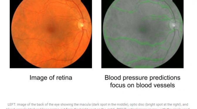 Google、網膜画像から心臓血管疾患のリスク因子を高精度に予測するディープラーニングアルゴリズムを開発