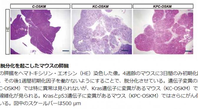 遺伝子変異だけでは膵臓がんにならない!膵臓がんの発生において遺伝子変異だけではなくエピジェネティックな変化が重要|京大【論文・エビデンス】