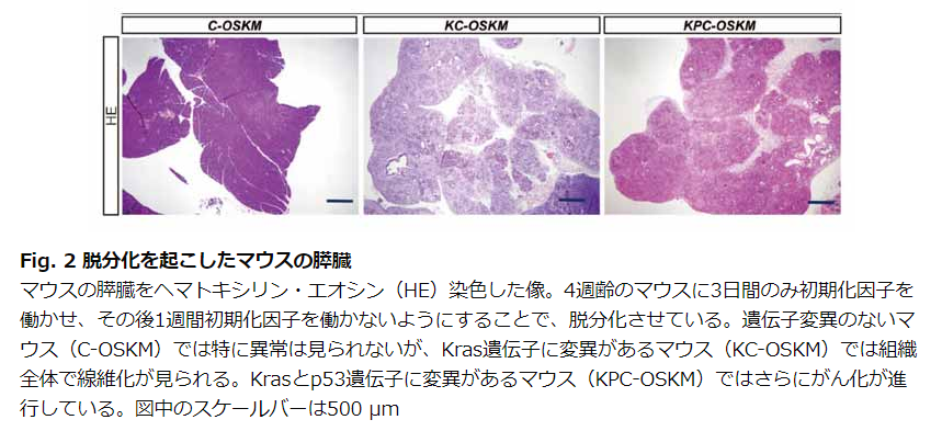 脱分化を起こしたマウスの膵臓|CiRA
