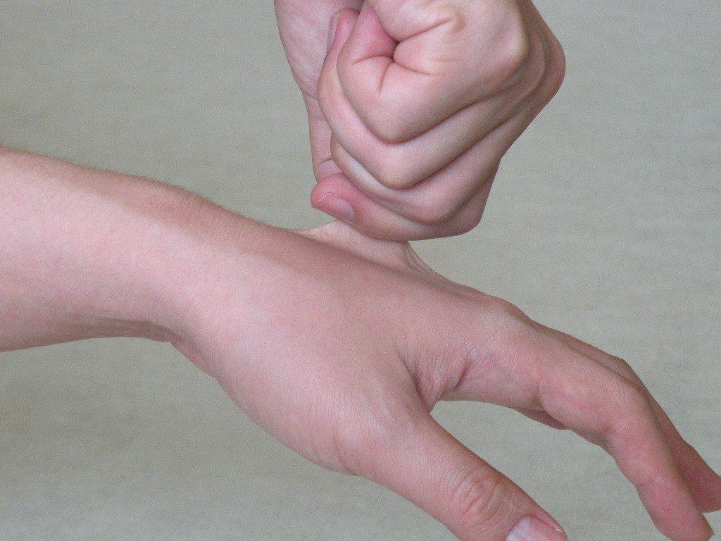 脱水を見極める方法として、「ツルゴール(皮膚の張り)の低下」
