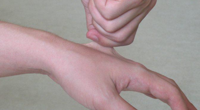 【手の関節リウマチに悩まされている患者さんにインタビュー】どのくらい痛いの?痛み・ツラさの程度について聞いたみた!