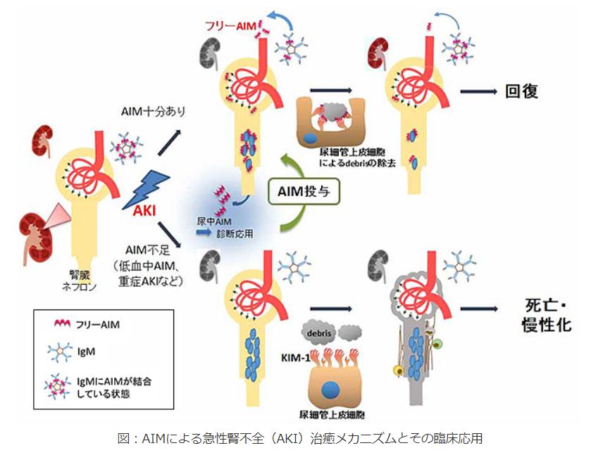 AIMによる急性腎不全(AKI)治癒メカニズムとその臨床応用