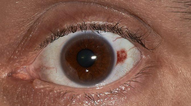 充血(目の充血)と出血(結膜下出血)の違い・特徴とは?
